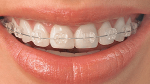 Ceramic Braces in Lees Summit and Pleasant Hill MO